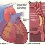 eXfuze seven plus testimoni jantung berlubang